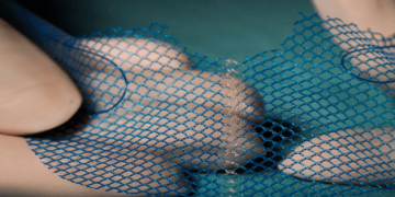 Vaginal mesh review: Investigating the true scale of complications